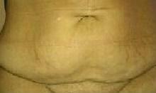 Addomioplastica