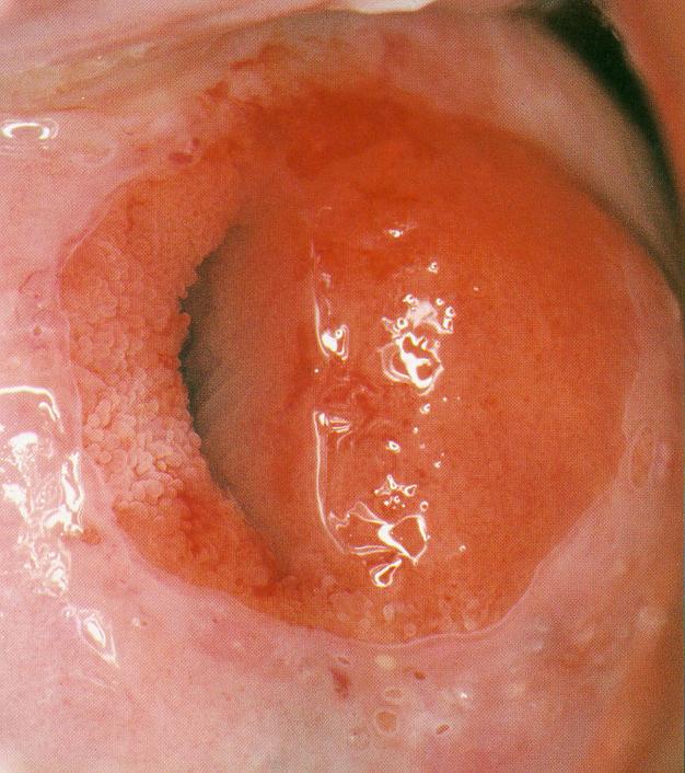 microfotocolposcopia