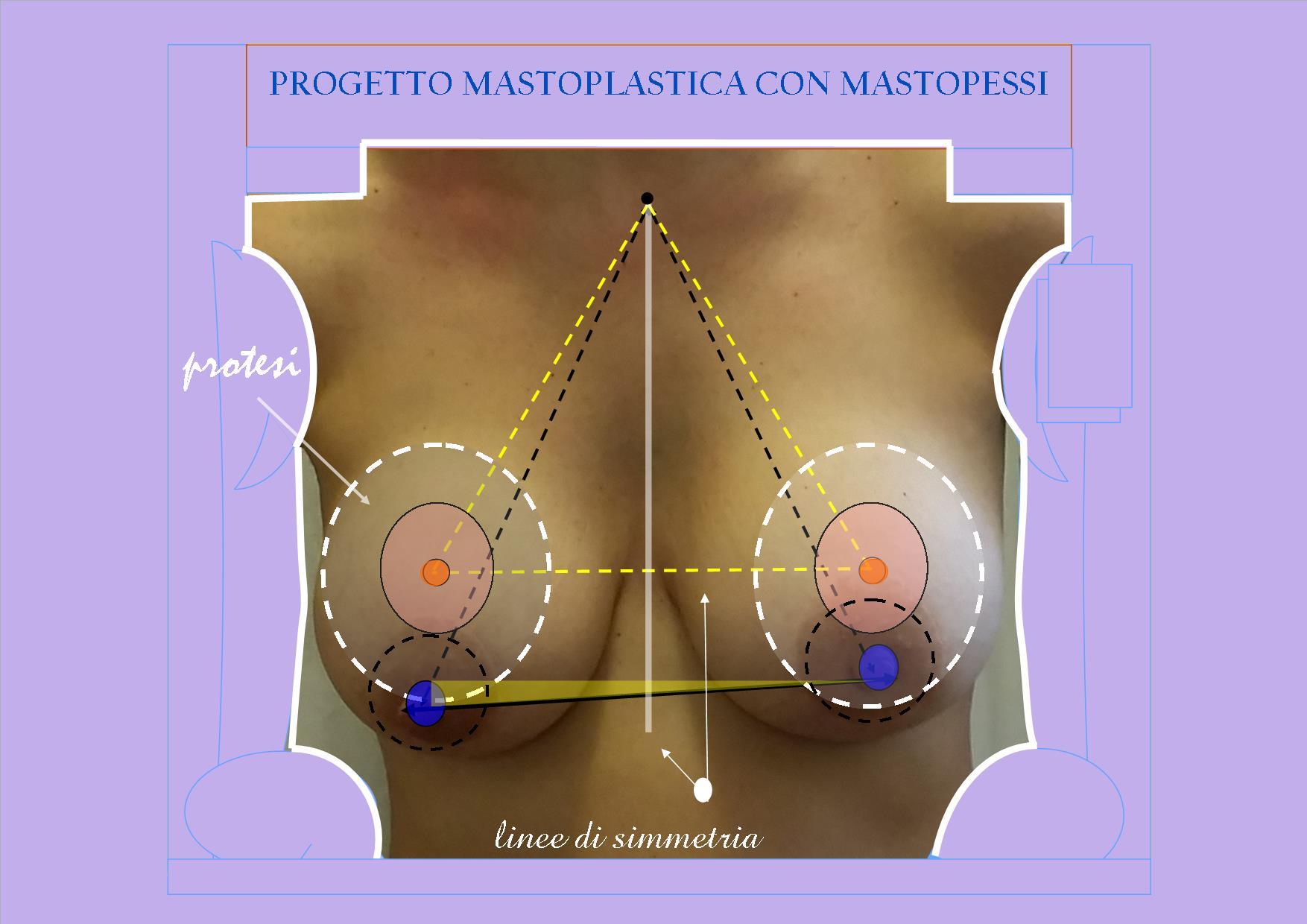 Progetto-mastoplastica-con-mastopessi